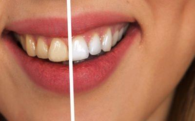 Les soins dentaires : les solutions pour avoir une bonne santé dentaire